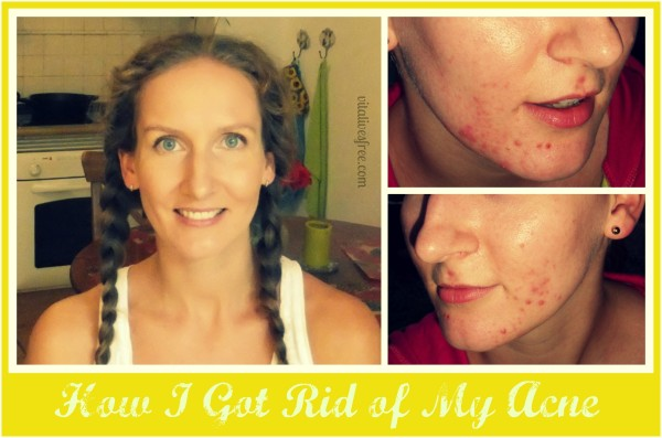 Picture of My 100% Natural Morning and Evening Skincare Routine - How I got Rid of Acne