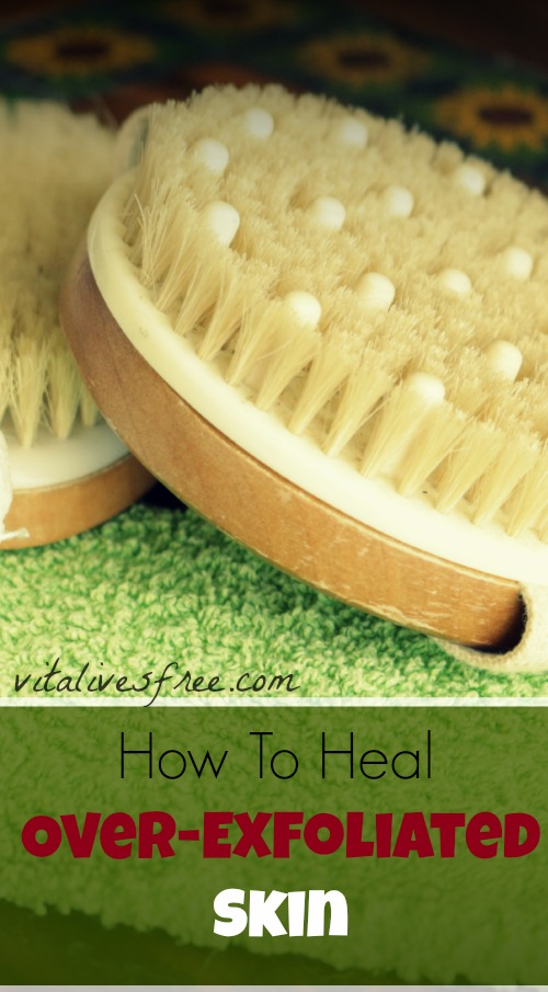 How To Heel Over-Exfoliated Skin With 16 Simple Steps