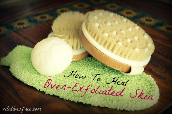 How To Heal Over-Exfoliated Skin With 16 Simple Steps. More tips at vitalvesfree.com.